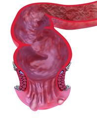 Hemorrhoids : Anal disorders