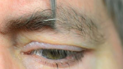 depilating a grey hair