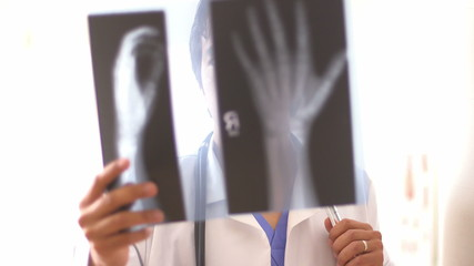 Mexican doctor reviewing hand x-rays
