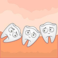 Impacted Wisdom tooth - Illustration