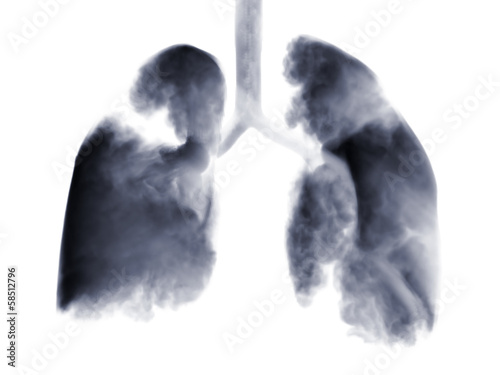Smoke shaped as human lungs. - 58512796