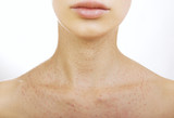 Female neck after hyaluronic injection (collagen biorevitalizati