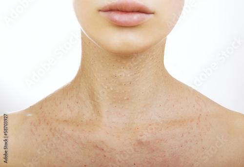 Female neck after hyaluronic injection (collagen biorevitalizati