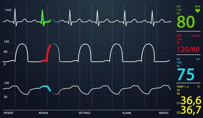 ICU monitor.