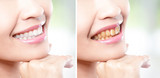 woman teeth before and after whitening