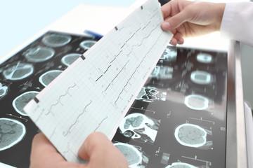 Study of ECG and tomography