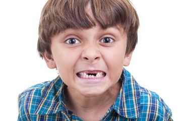 Missing baby teeth