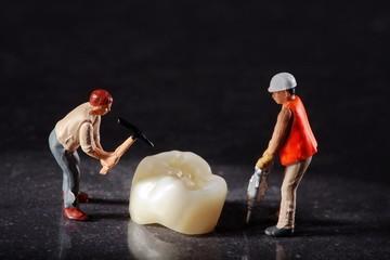 Miniatur Arbeiter am Zahn Ersatz