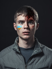 Ukrainian student beaten