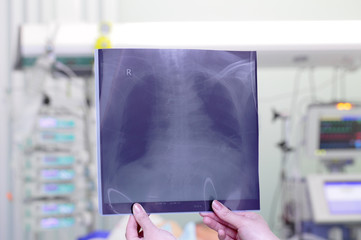 Chest x-ray image in ICU
