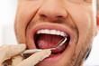 Man doing teeth checkup at dentist's surgery