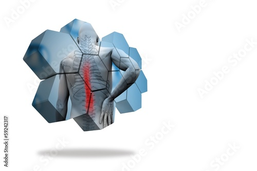 Back injury diagram on abstract screen