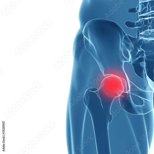 Human hip joint, showing area of pain