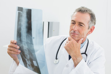 Doctor looking at x-ray picture of spine in office