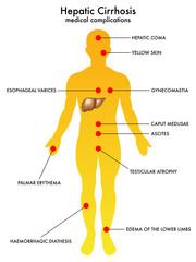 cirrosi epatica