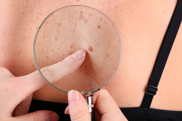 Dermatologist examines a birthmark of patient, close up