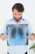 Smiling young man holding lung x-ray