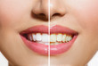 Leinwanddruck Bild - Woman Teeth Before and After Whitening. Oral Care
