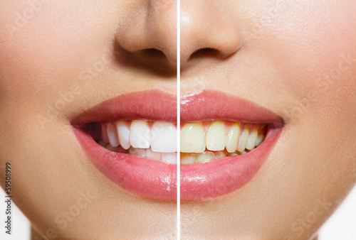Leinwanddruck Bild Woman Teeth Before and After Whitening. Oral Care