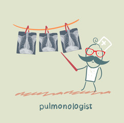 pulmonologist shows an X-ray of human lung