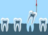 Den Zahn ziehen