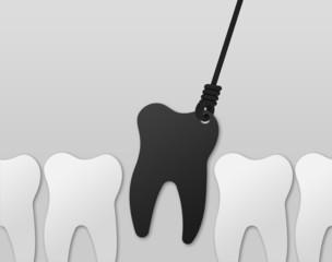 Karies Zahn ziehen