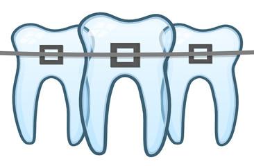 Die Zahnspange