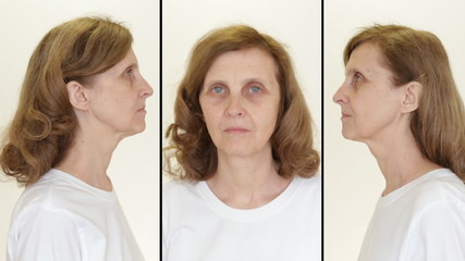 Wrinkled woman