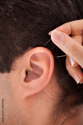 Person Holding Needle Near Ear