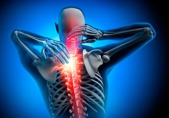 Nackenschmerz