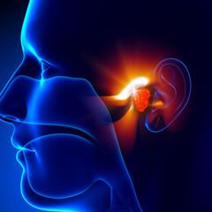 Adenoids - Ear
