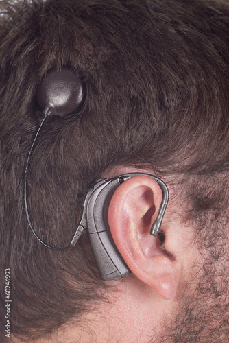 close up young man with cochlear implant