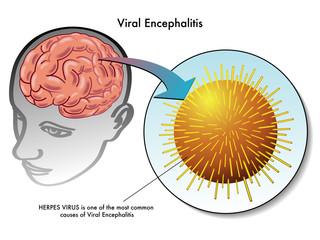encefalite virale