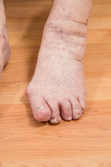 closeup of a senior person's foot with arthritis