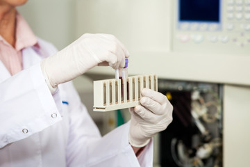 Female Medical Worker Analyzing Blood Samples