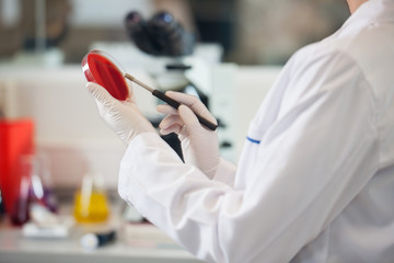 Scientist Examining Petri Dish With Blood Sample