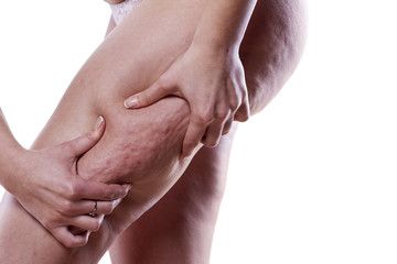 Young woman holding and pinching cellulite on her leg