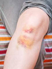 knee injury - bruise on leg