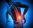 Rückenschmerz 3