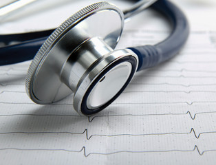 A stethoscope on a cardiogram
