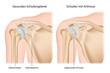 Schulter Arthrose, Omarthrose mit Erklärung deutsch