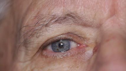 Senior eye