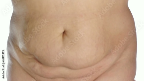 obese woman's stomach on white background