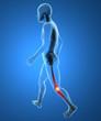 Uomo scheletro camminata dolore infiammazione ginocchio