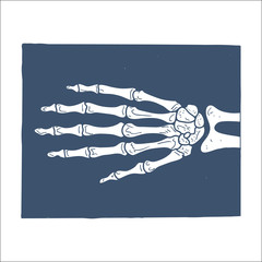Hand X-ray picture.