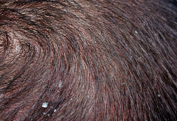 Dandruff in the hair