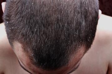 Psoriasis skin