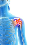 inflammation of the shoulder joint poster