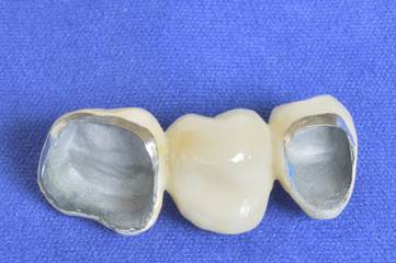 Teeth in the foreground