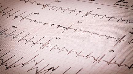 Kalp ritmi